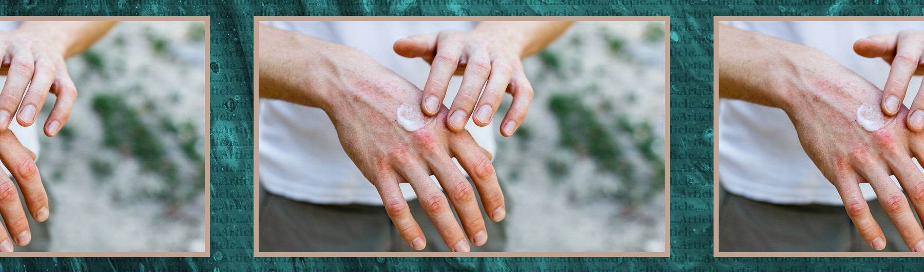 How nutritional therapy may help with eczema